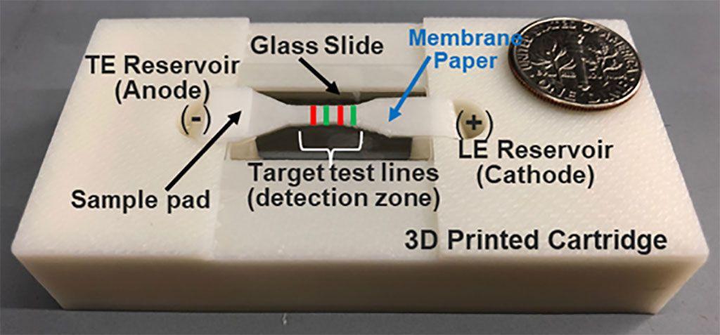 Imagen: Imagen del dispositivo de isotacoforesis (ITP) en papel que aísla, enriquece y detecta exosomas de una línea celular de cáncer de próstata (Fotografía cortesía de la Universidad Estatal de Washington).