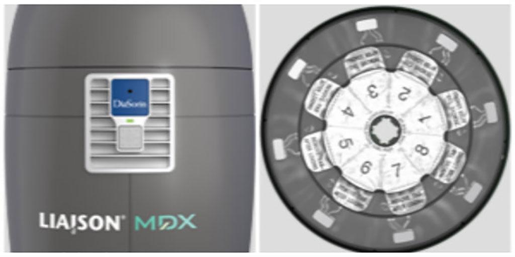 Imagen: LIAISON® MDX (Fotografía cortesía de DiaSorin Molecular LLC)