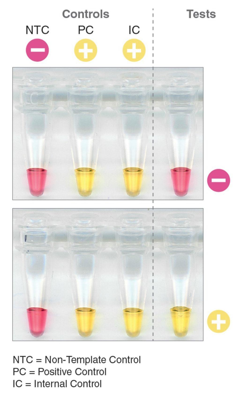 Imagen: Detección rápida, simple y basada en el color del ARN del SARS-CoV-2 (Fotografía cortesía de New England Biolabs Inc.).