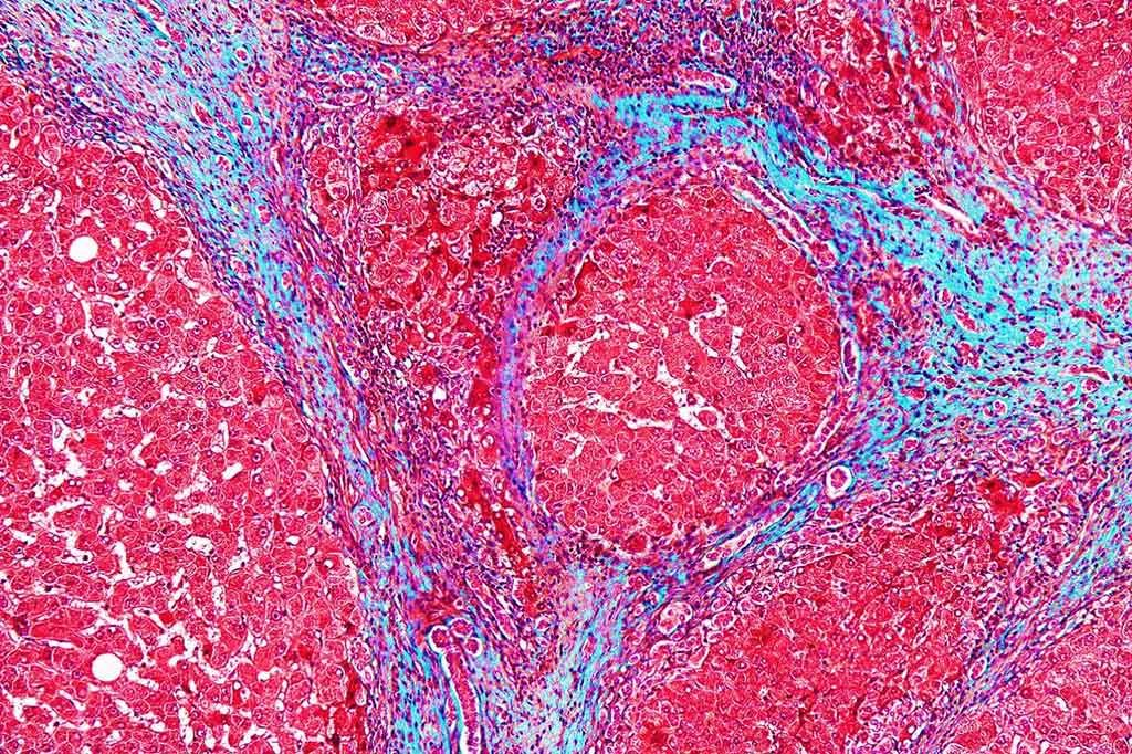 Imagen: Microfotografía de gran aumento de un hígado con cirrosis (Fotografía cortesía de Nephron).
