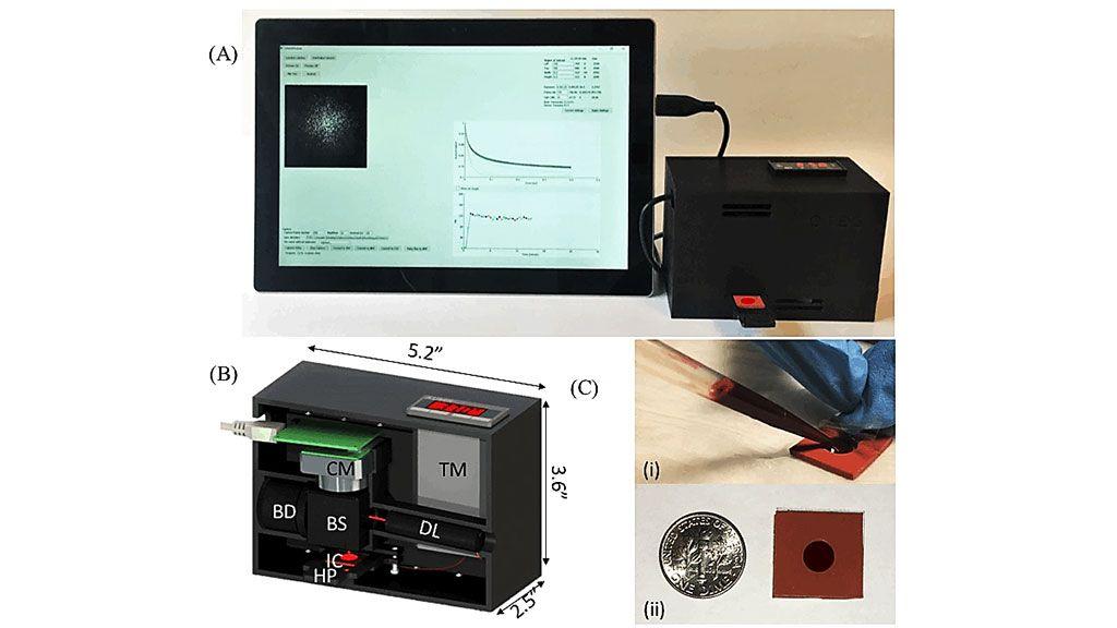 Imagen: Un sensor de coagulación novedoso basado en LSR llamado iCoagLab fue comparado favorablemente con la tromboelastografía para determinar el riesgo de hemorragia (Fotografía cortesía del Hospital General de Massachusetts).