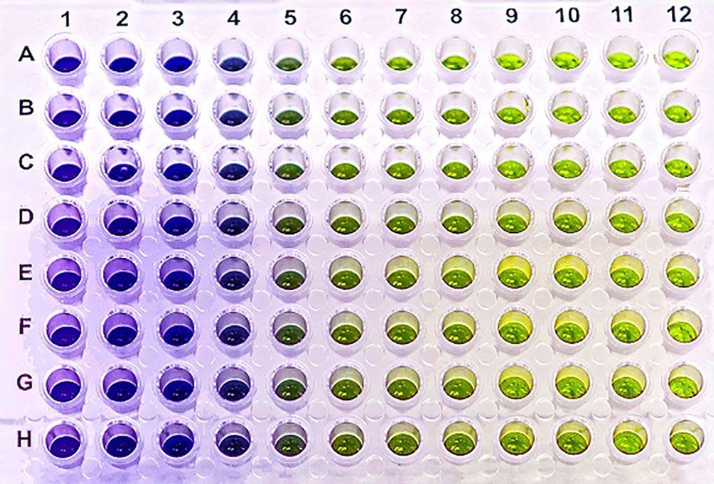 Imagen: Se usó un ensayo inmunoabsorbente ligado a enzimas (ELISA) para medir la melatonina, que fue significativamente mayor en los pacientes con enfermedad de Parkinson (Fotografía cortesía de Gold Biotechnology).