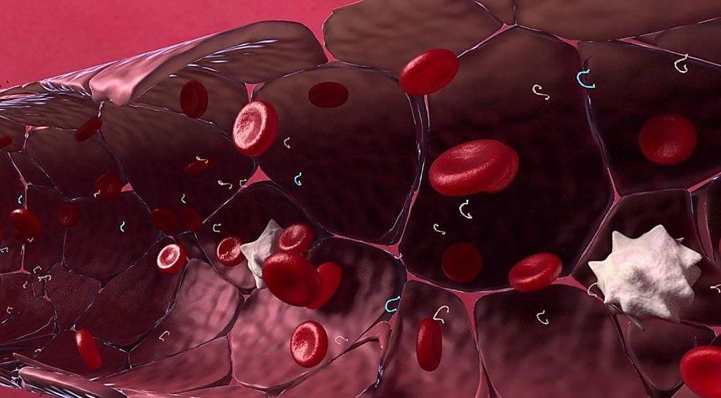 Imagen: El ensayo RaDaR (enfermedad residual y recurrencia) detecta el ADN tumoral circulante (ADNc) que se encuentra en el torrente sanguíneo (Fotografía cortesía de Inivata).