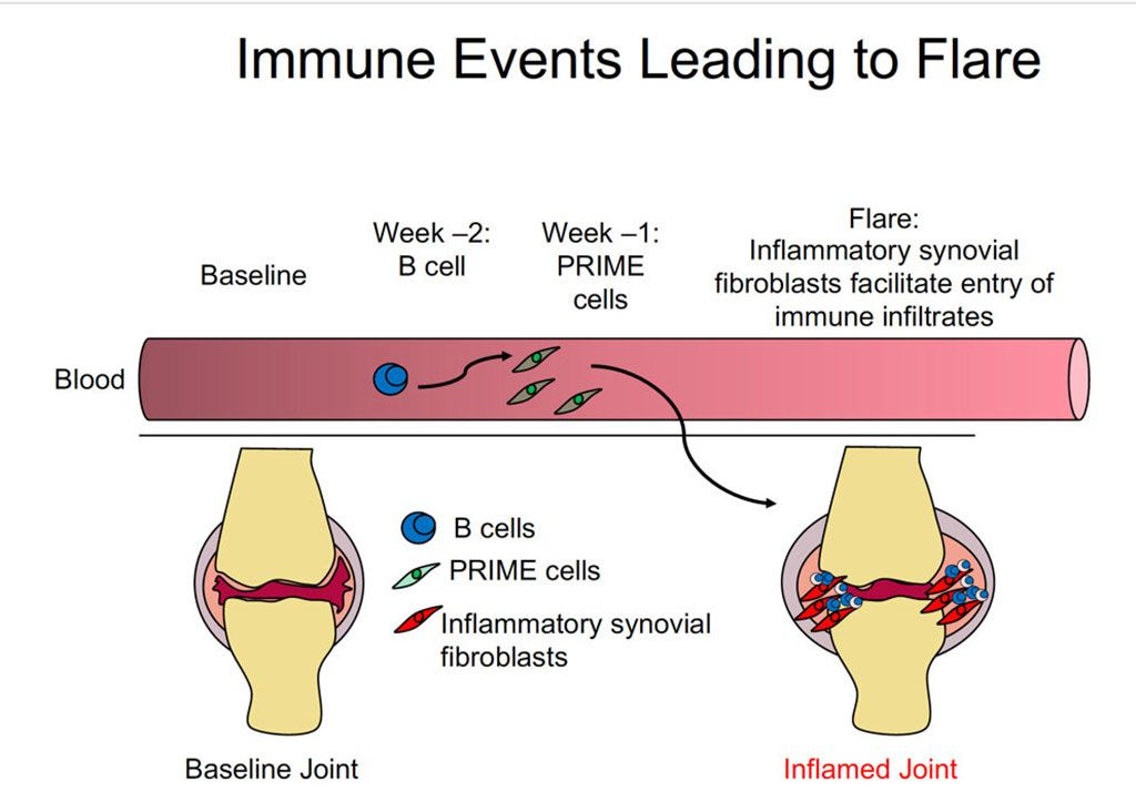 Imagen: Eventos inmunes que conducen a una exacerbación de la artritis reumatoide (Fotografía cortesía de la Dra. Dana Orange, Universidad Rockefeller)