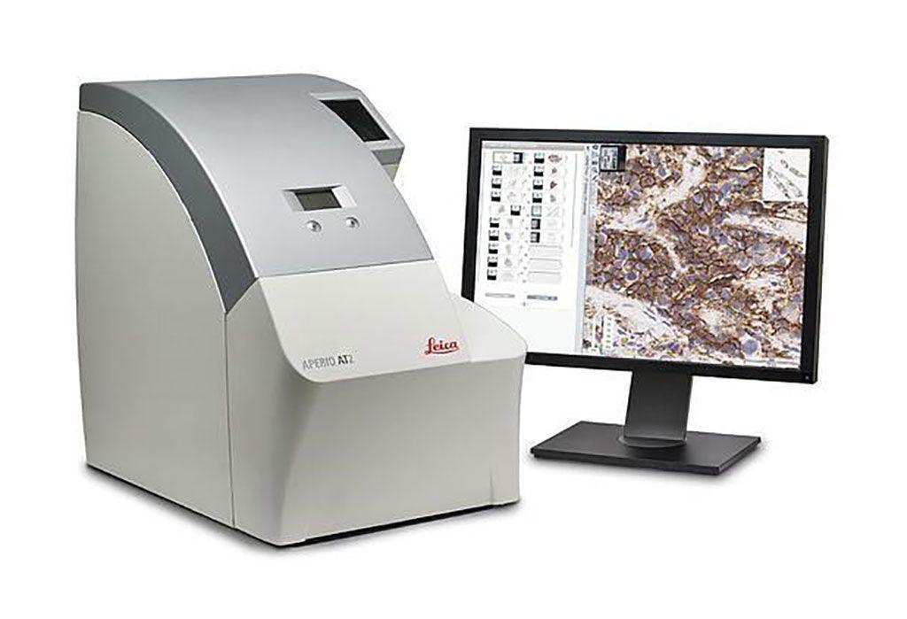 Imagen: El Aperio AT2 es el escáner ideal de láminas de patología digital para los laboratorios clínicos de alto rendimiento, que ofrecen láminas electrónicas precisas con baja tasa de reescaneo (Fotografía cortesía de Leica Biosystems).