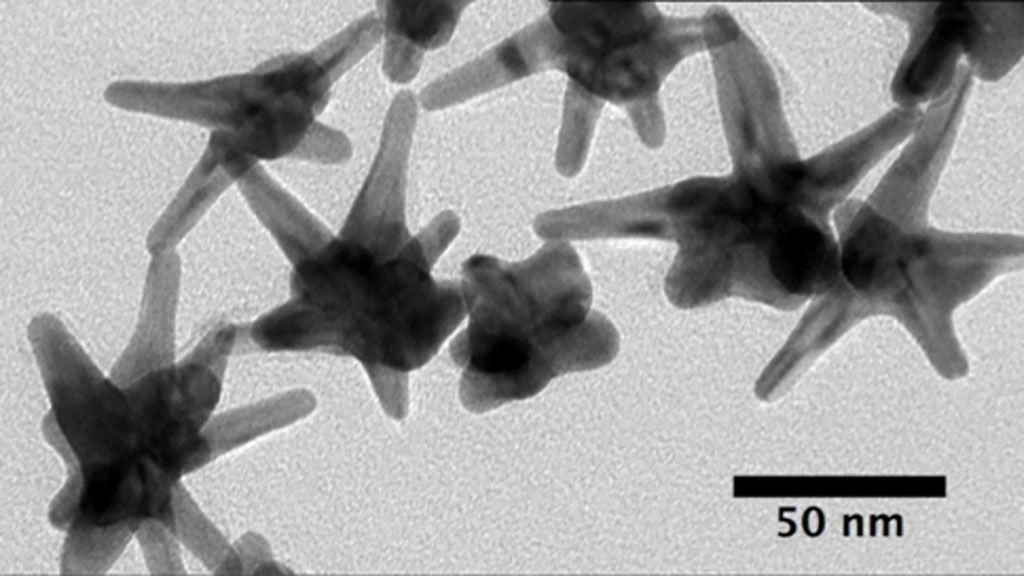 Imagen: Micrografía de biosensores de nanoestrellas de oro utilizados para detectar microARN relacionados con el cáncer (Fotografía cortesía de la Facultad de Ingeniería de la Universidad de Duke)