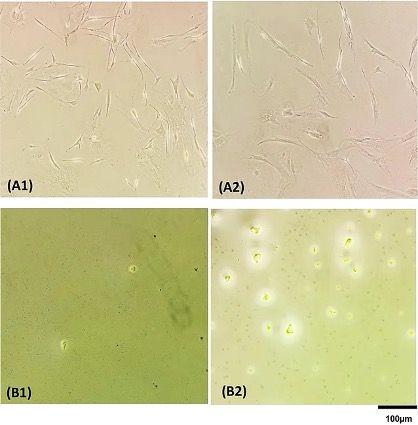 Imagen: Células en los pozos de una placa de 96 pozos antes (A) y después (B) de lisis celular, mediante PCR directa (B1) y Chelex100 (B2) (Fotografía cortesía del Hospital Universitario de Hamburgo ‐ Eppendorf).