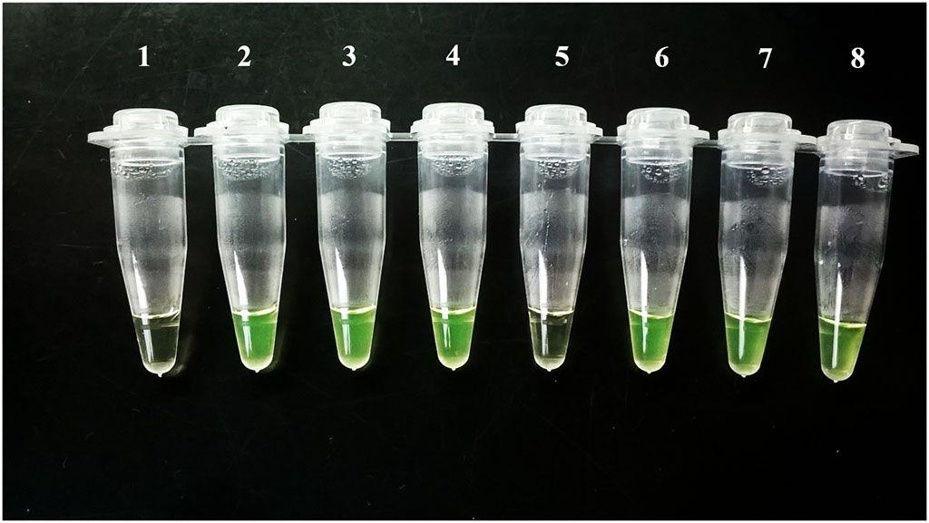 Imagen: Visualización de los resultados de la prueba Loopamp Trypanosoma cruzi a simple vista, los tubos 1 (control negativo) y 5 fueron negativos, pero el # 5 fue positivo en la qPCR con una carga de ADN muy baja (Fotografía cortesía del Laboratorio de Biología Molecular de la Enfermedad de Chagas).