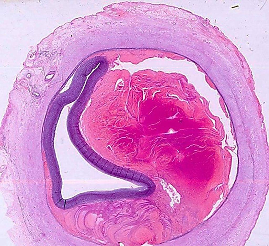 Imagen: Histopatología de la arteria coronaria mostrando un hematoma intramural que comprime la luz del vaso desde el exterior de un paciente con disección espontánea de la arteria coronaria (Fotografía cortesía de la profesora Mary N Sheppard, MBBCh FRCPath).