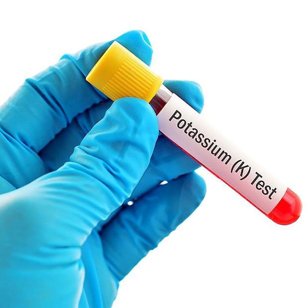 Imagen: Un nivel bajo de potasio (K+), conocido como hipopotasemia, en el suero sanguíneo en pacientes con COVID-19 se asocia con la gravedad de la enfermedad y la necesidad de ventilación mecánica invasiva (Fotografía cortesía de Remedy Health Media).