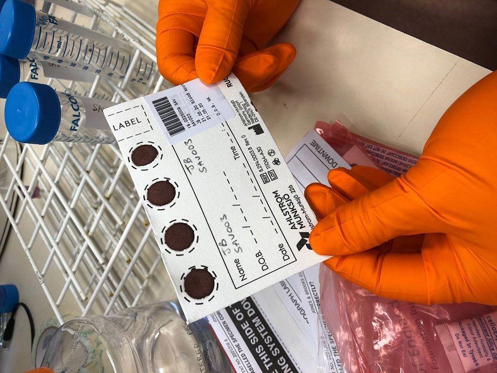 Imagen: El muestreo de muestras de sangre seca es simple, económico y el paciente puede recolectarlo personalmente en casa, con un simple pinchazo en el dedo (Fotografía cortesía de la Universidad de Birmingham)