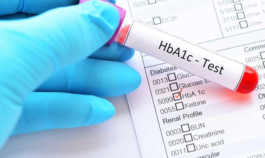 Imagen: La prueba de cribado de hemoglobina glucosilada (HbA1c) revela diabetes no diagnosticada (Fotografía cortesía de Diabetes.co.uk).