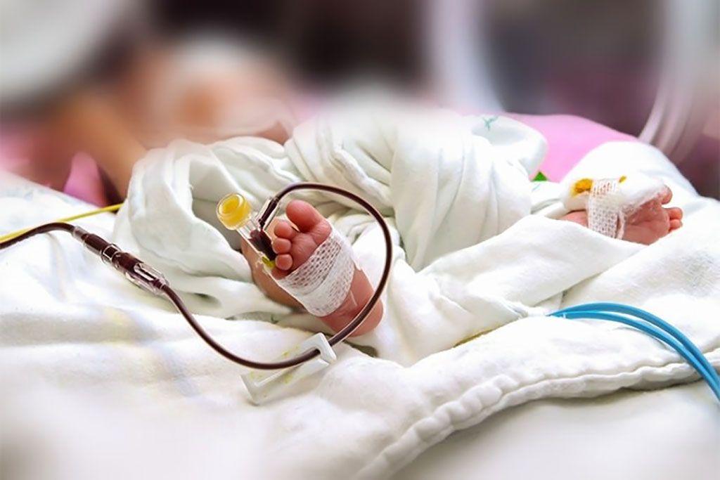 Imagen: Pie de un recién nacido con un catéter intravenoso periférico en la unidad de cuidados intensivos neonatales. Los recién nacidos a quienes les practicaron una cirugía tuvieron peores resultados si habían recibido una transfusión de sangre preoperatoria (Fotografía cortesía de Atichayo).
