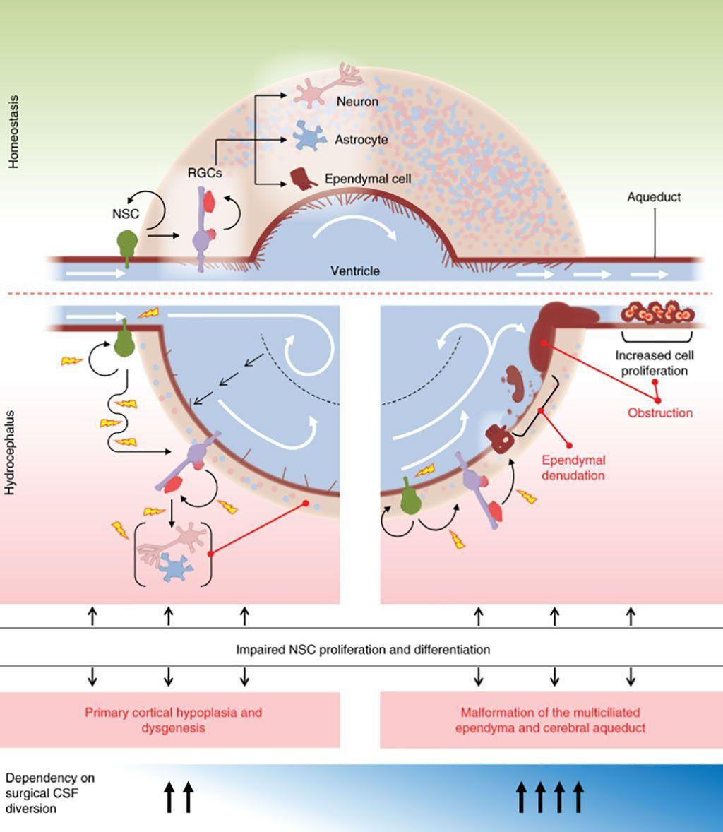 Imagen: Un modelo de células madre neurales de hidrocefalia congénita esporádica (Fotografía cortesía de la Facultad de Medicina de la Universidad de Yale).
