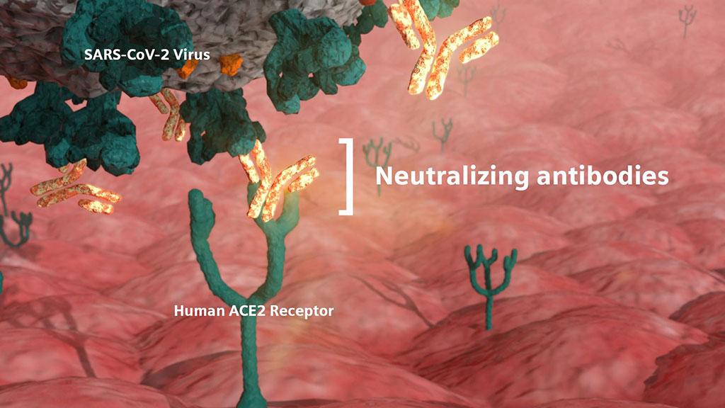 Imagen: Los anticuerpos neutralizantes son fundamentales en la lucha contra la COVID-19 porque defienden a las células de la infección por el virus (Fotografía cortesía de Siemens Healthineers)