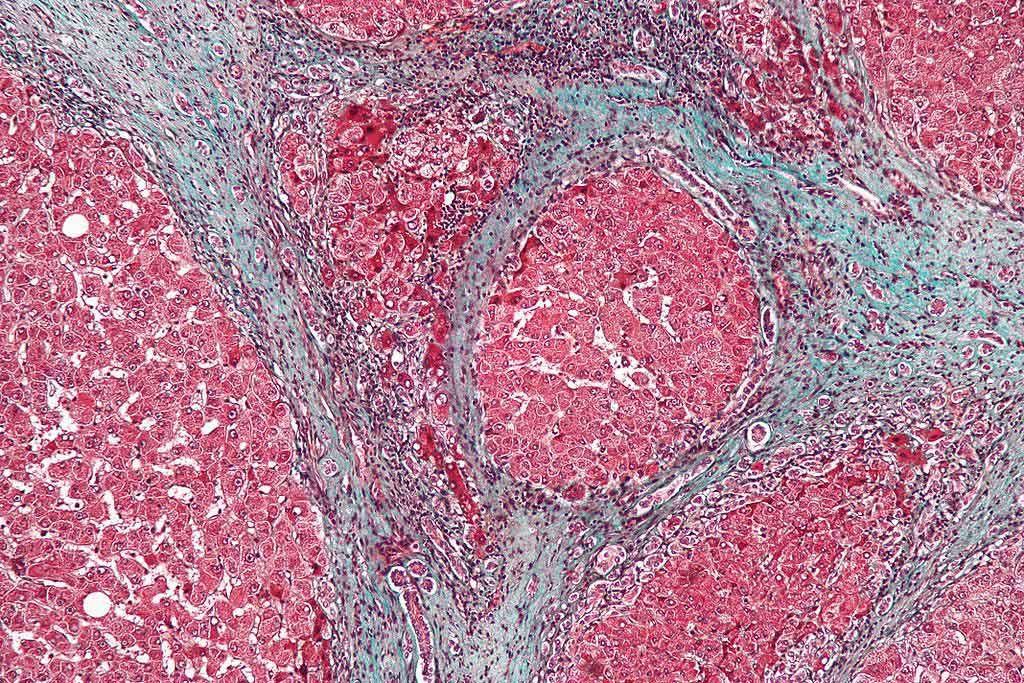 Imagen: Microfotografía que muestra la fibrosis del hígado causada por cirrosis. El tejido de este ejemplo se tiñe con una coloración tricrómica, en la que la fibrosis es de color azul. Las áreas rojas son el tejido hepático nodular (Fotografía cortesía de Wikimedia Commons)