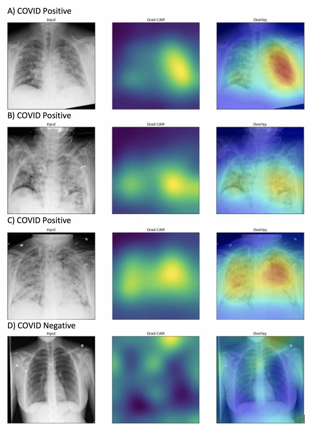 Imagen: Los mapas de calor generados resaltaron adecuadamente las anomalías de los campos pulmonares en las imágenes marcadas con exactitud como positivas para COVID-19 (de la A a la C) a diferencia de las imágenes que fueron marcadas con exactitud como negativas para COVID-19 (D). La intensidad de los colores que aparecen en el mapa de calor corresponde a las características de la imagen que son significativas para predecir la positividad para COVID-19 (Fotografía cortesía de la Universidad Northwestern)