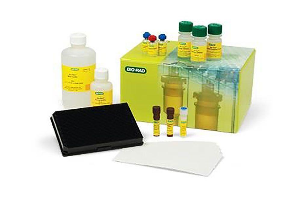 Imagen: El panel de citocinas Bio-Plex Pro Human Th17 permite la medición de analitos en diversas matrices, como suero, plasma y sobrenadantes de cultivos celulares (Fotografía cortesía de Bio-Rad).