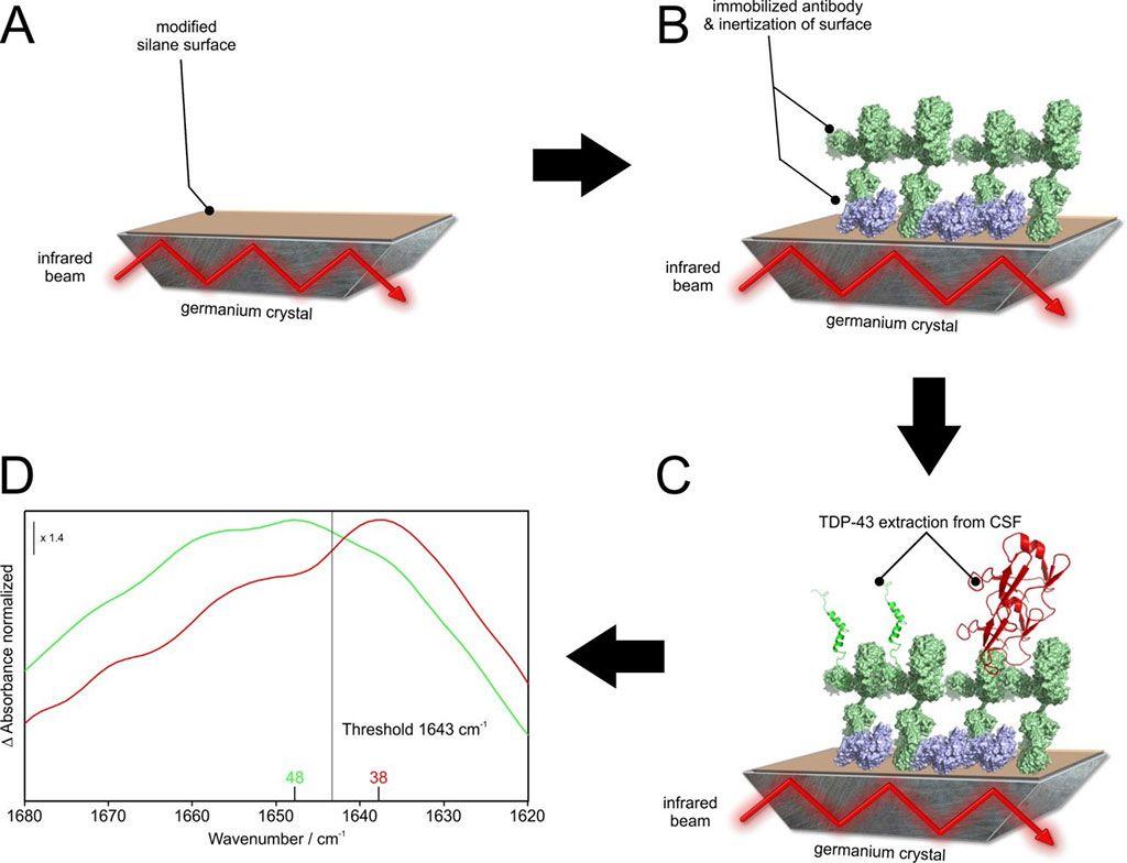 Imagen: Ilustración esquemática del sensor inmunoinfrarrojo. Usando anticuerpos de captura oligoclonales, todas las isoformas de TDP-43 se extraen del LCR (Fotografía cortesía de la Universidad de Ruhr en Bochum).