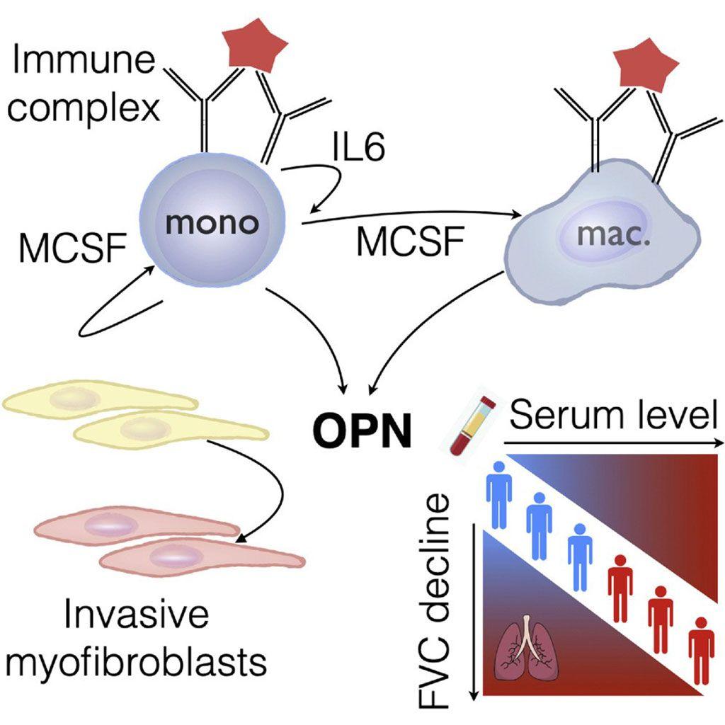 Imagen: Diagrama esquemático de la osteopontina vincula la activación mieloide y la progresión de la enfermedad en la esclerosis sistémica (FVC = capacidad vital forzada) (Fotografía cortesía de la Universidad de Michigan).