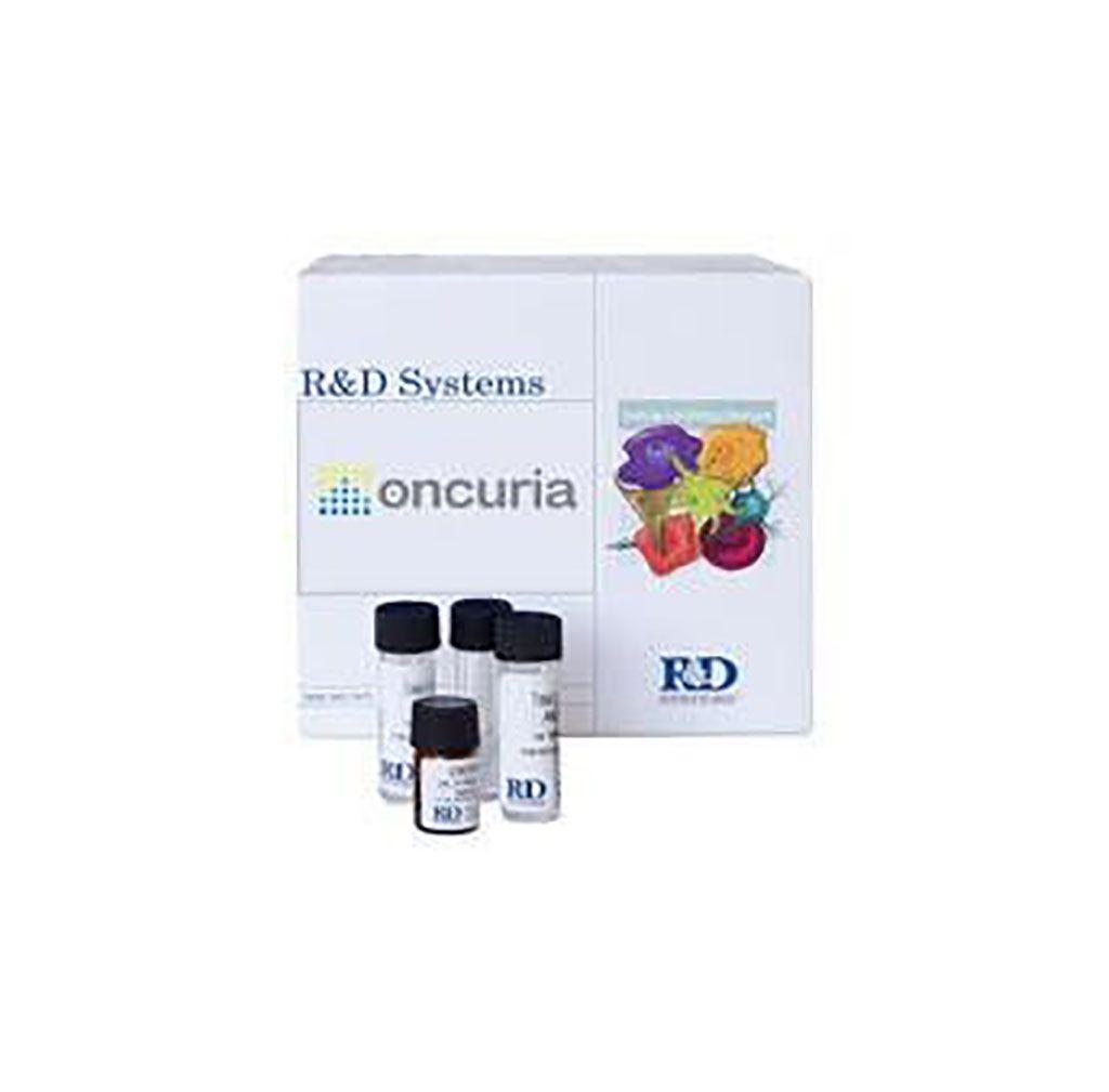 Imagen: Oncuria es una prueba de orina simple que detecta y analiza múltiples biomarcadores de proteínas tumorales para mejorar la detección del cáncer de vejiga (Fotografía cortesía de Nonagen Bioscience Corporation).