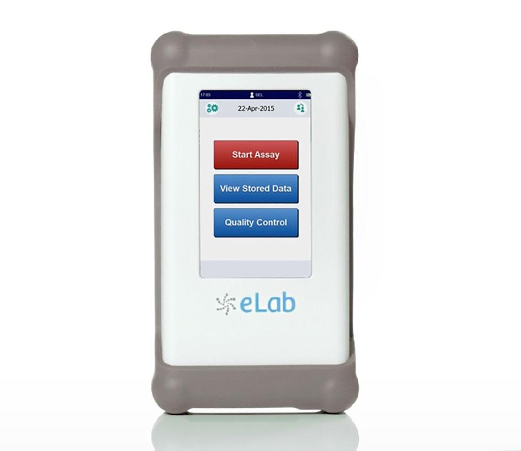 Imagen: La plataforma de análisis móvil Nanomix eLab® (Fotografía cortesía de Nanōmix, Inc.)