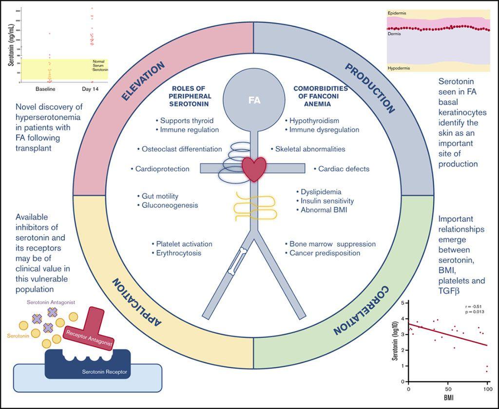 Imagen: El metabolismo del triptófano está mal regulado en personas con anemia de Fanconi (Fotografía cortesía del Centro Médico del Hospital Infantil de Cincinnati).