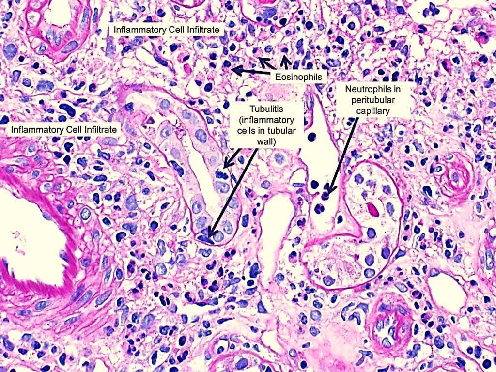 Imagen: Histopatología de la nefritis intersticial aguda inducida por fármacos que muestra inflamación intersticial con eosinófilos prominentes y tubulitis (la presencia de células inflamatorias dentro de la pared tubular) (Fotografía cortesía de NephSim).