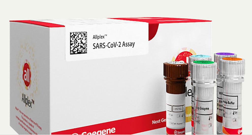 Imagen: Ensayo Allplex SARS-CoV-2 (Fotografía cortesía de Seegene, Inc.)