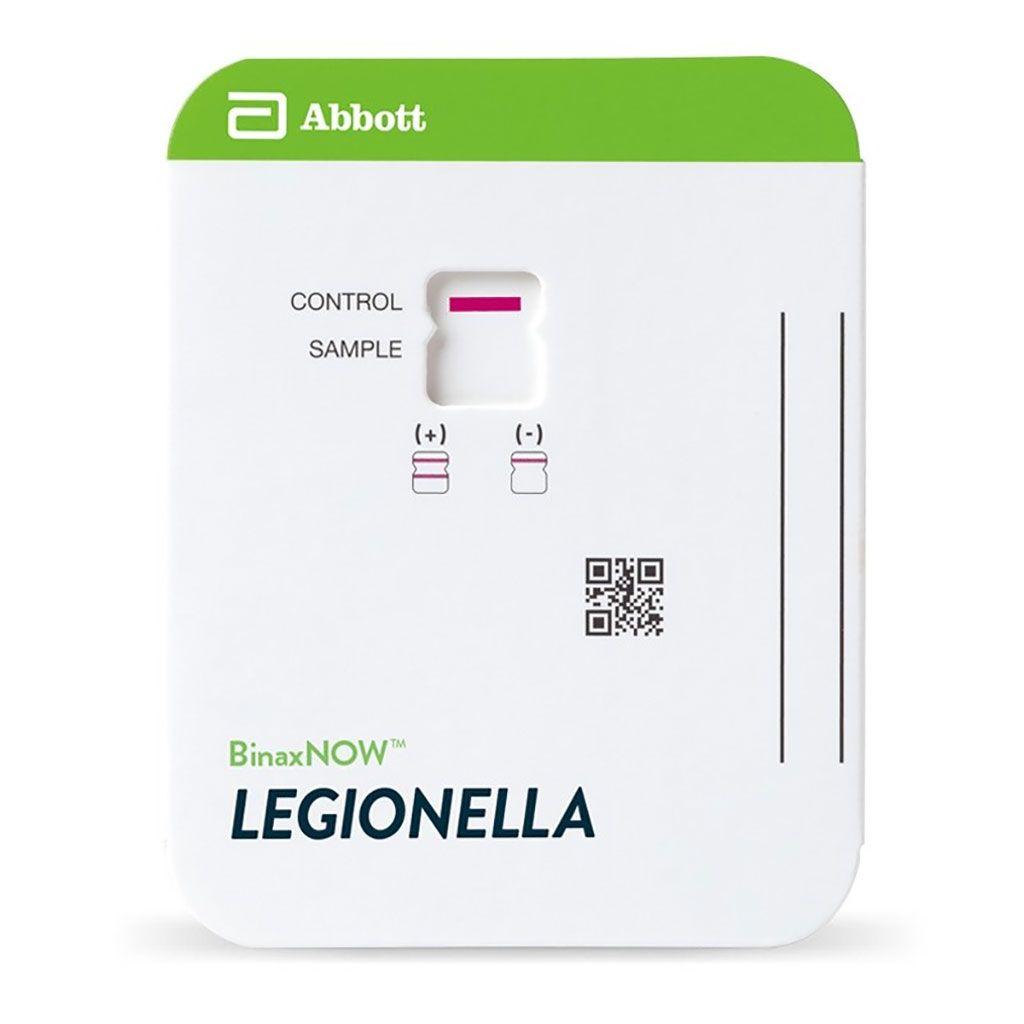 Imagen: La tarjeta de antígeno urinario BinaxNOW Legionella. Exacta. Identificación rápida de la enfermedad del legionario causada por Legionella pneumophila serogrupo 1 con una tecnología fácil de usar (Fotografía cortesía de Abbott).