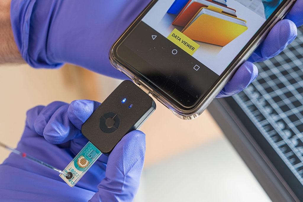 Imagen: Chip de microfluidos del tamaño de una estampilla (Fotografía cortesía de Jeff Fitlow)