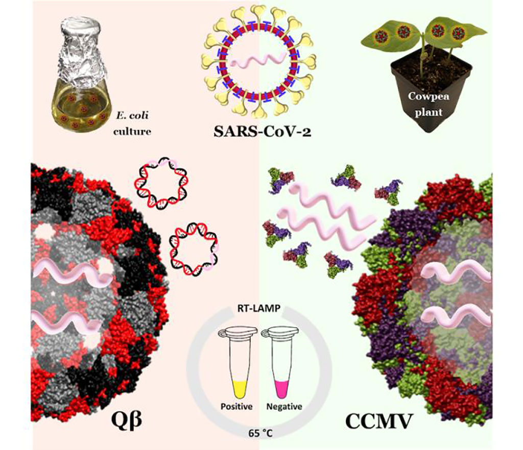 Imagen: Las nanopartículas similares al coronavirus, hechas de virus de plantas y bacteriófagos, podrían servir como controles positivos para la prueba RT-LAMP (Fotografía cortesía de Soo Khim Chan)