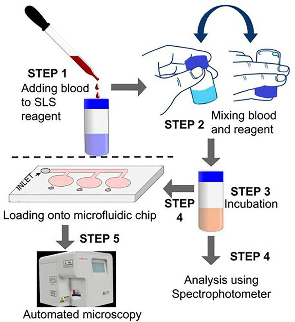 Imagen: Flujo de trabajo para la determinación de hemoglobina utilizando un microscopio automatizado (Fotografía cortesía de Sigtuple Technologies).