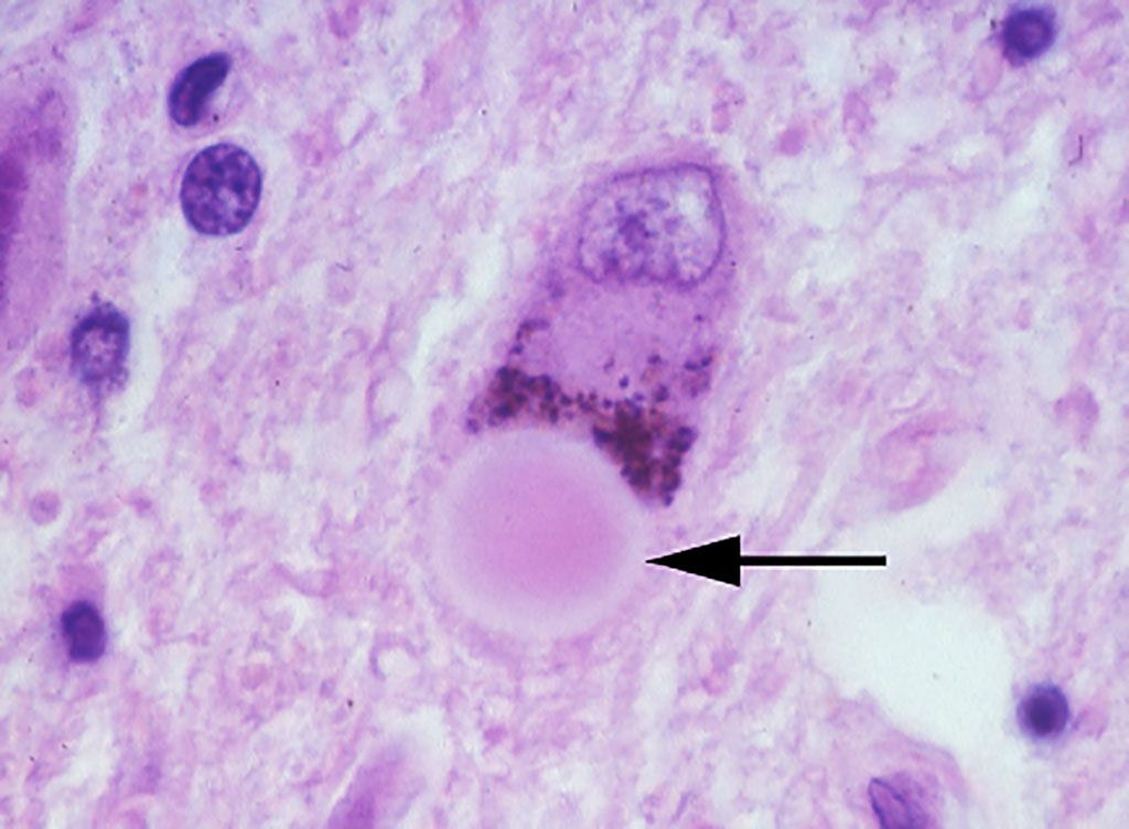 Imagen: Histopatología de cuerpos de Lewy en el mesencéfalo. Un cuerpo de Lewy en una neurona melanizada de la sustancia negra. El cuerpo de Lewy es el cuerpo esférico señalado por la flecha (Fotografía cortesía de la Dra. Susan Daniel).