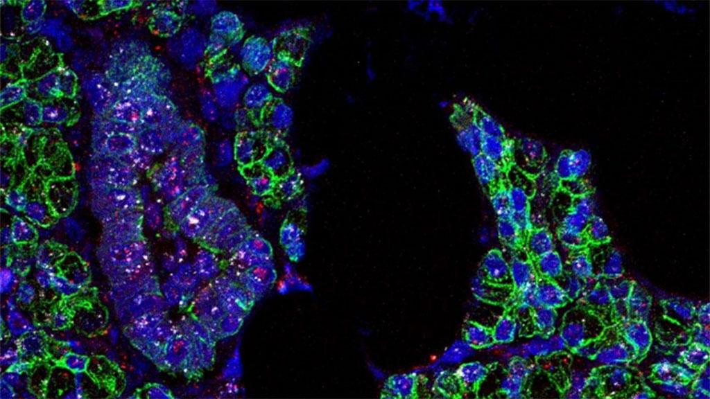 Imagen: Se encontró ARN para SARS-CoV-2 (rosa) y el receptor ACE2 (blanco) en las células de las glándulas salivales, que están delineadas en verde (Fotografía cortesía de Paola Perez, PhD, Warner Lab)