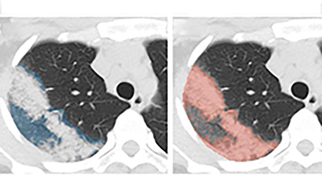 Imagen: El método acelerado por IA monitoriza la severidad de la enfermedad COVID-19 a partir de las TCs de tórax del paciente (Fotografía cortesía de NVIDIA)