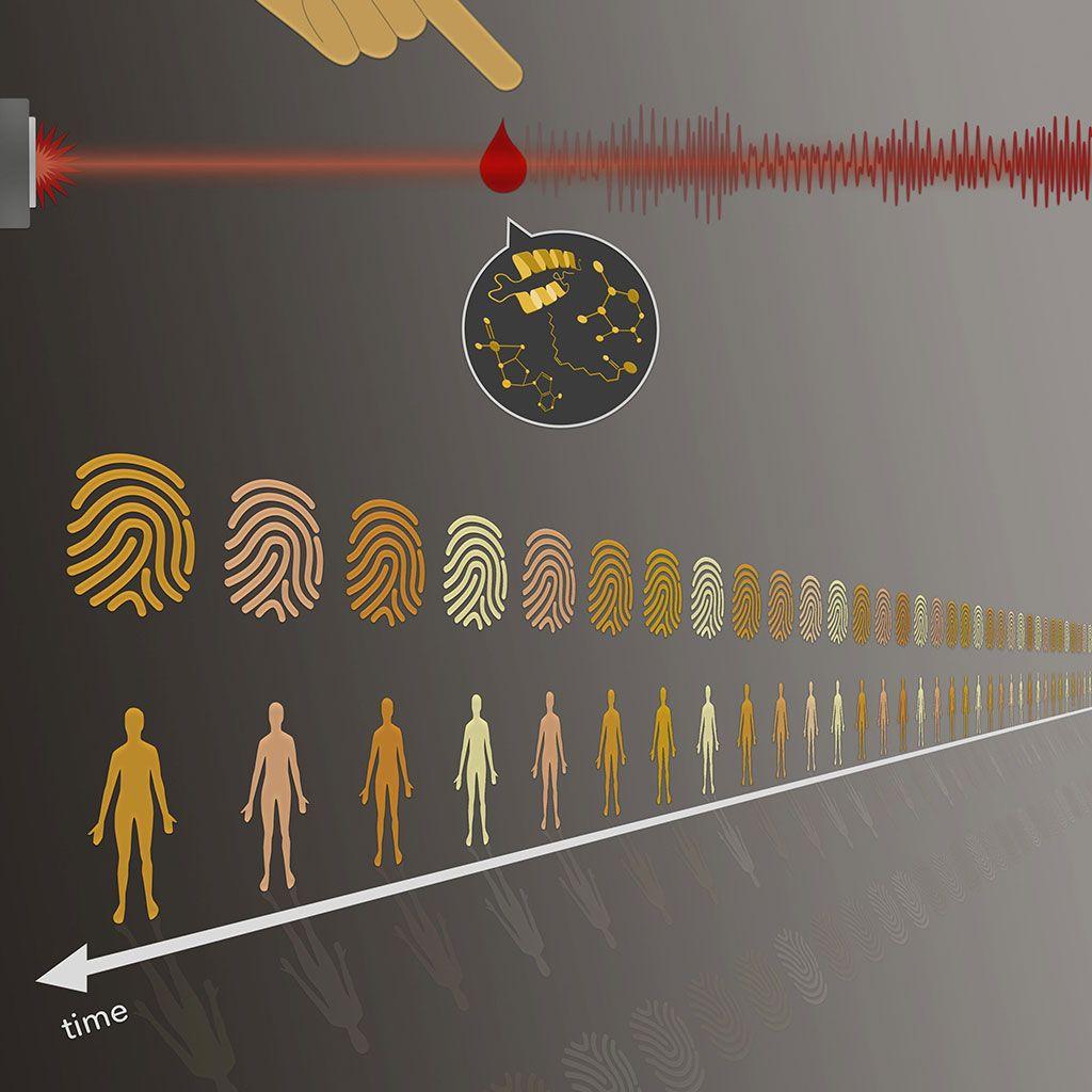 Imagen: Los paneles sanguíneos son tan individuales como las huellas digitales. Los investigadores han demostrado que la llamada huella digital molecular de la sangre es estable en el tiempo (Fotografía cortesía del Instituto Max Planck de Óptica Cuántica)