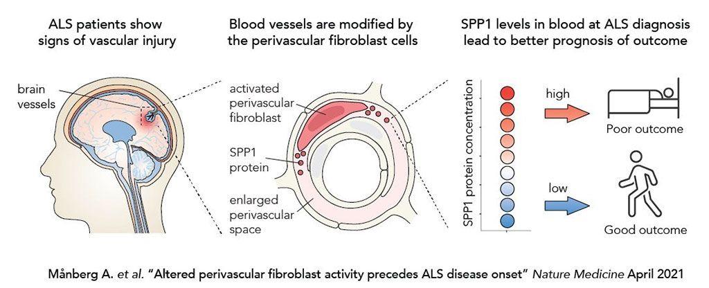 Imagen: La alteración en la actividad de los fibroblastos perivasculares precede al inicio de la esclerosis lateral amiotrófica (Fotografía cortesía de Karolinska Institutet)