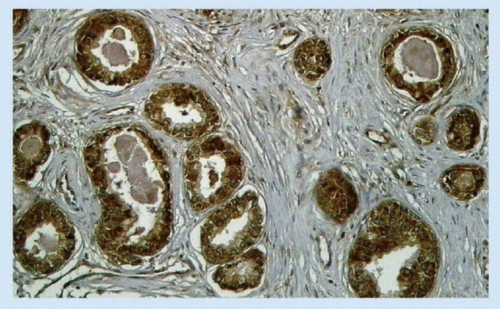 Imagen: EN2: un nuevo biomarcador para el cáncer de próstata (Fotografía cortesía de Future Medicine)