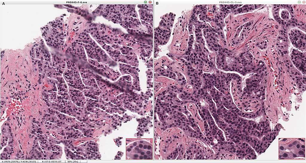 Imagen: Los cortes estándar de hematoxilina-eosina no se ven afectados por el procesamiento y la obtención de imágenes mediante la limpieza de la histología con microscopía multifotónica (CHiMP). Porciones de la misma biopsia de núcleo se enviaron directamente al procesamiento estándar (A) o fueron procesadas por CHiMP y posteriormente se incluyeron en parafina, se seccionaron y se colorearon (B), mostrando una coloración y morfología equivalentes (Fotografía cortesía de la Facultad de Medicina de Yale)