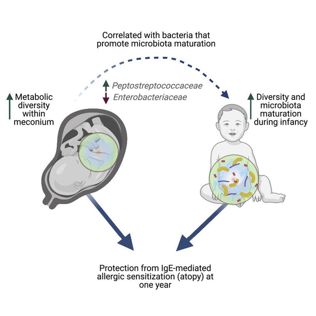 Imagen: El diagrama esquemático de un metaboloma rico en meconio en bebés humanos está asociado con la composición de la microbiota intestinal en la vida temprana y la sensibilización alérgica reducida (Fotografía cortesía de la Universidad de la Columbia Británica)