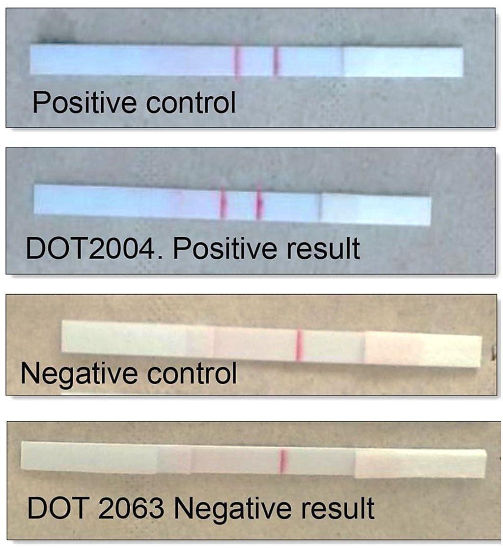 Imagen: Resultados del ensayo de amplificación de recombinasa polimerasa-flujo lateral (RPA-LF) para la leishmaniasis cutánea (Fotografía cortesía de la rama médica de la Universidad de Texas)