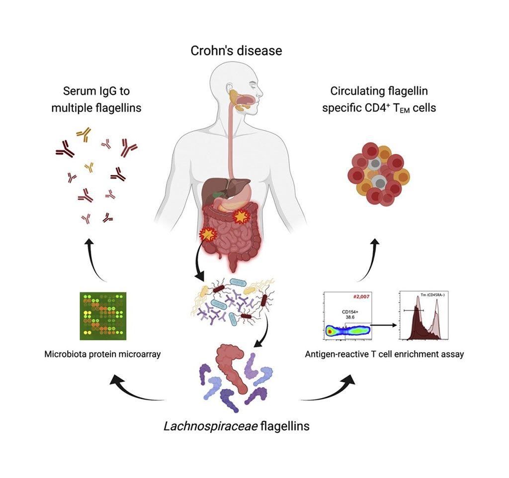Imagen: Diagrama esquemático de cómo las flagelinas de la microbiota humana impulsan las respuestas inmunitarias adaptativas en la enfermedad de Crohn (Fotografía cortesía de la Universidad de Alabama en Birmingham)