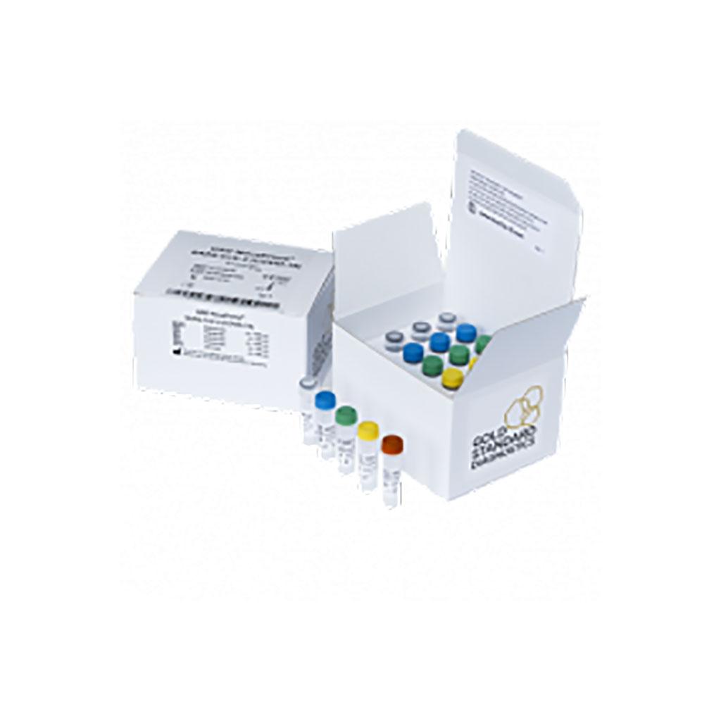 Imagen: Ensayo GSD NovaType III SARS-CoV-2 RT-PCR (Fotografía cortesía de Eurofins Technologies)