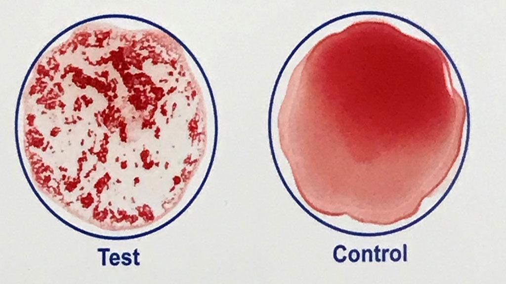 Imagen: Una imagen tomada de un video de YouTube muestra los resultados de un análisis de sangre rápido desarrollado por investigadores de Johns Hopkins que puede confirmar en minutos si una persona ha sido vacunada contra el SARS-CoV-2, el virus que causa la COVID-19 (Fotografía cortesía de Robert Kruse)