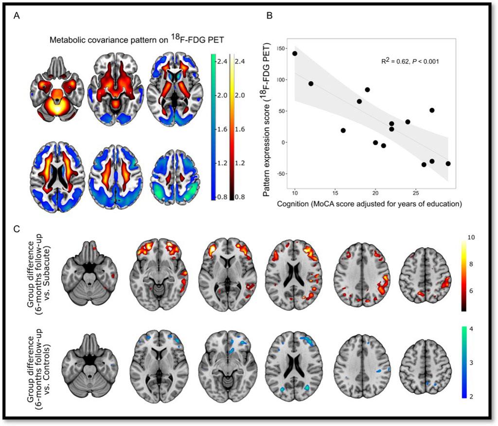 Imagen: Las imágenes TEP pueden medir con precisión el deterioro cognitivo en pacientes con COVID-19 (Fotografía cortesía de G Blazhenets et al., Departamento de Medicina Nuclear, Centro Médico - Universidad de Friburgo, Facultad de Medicina, Universidad de Friburgo)