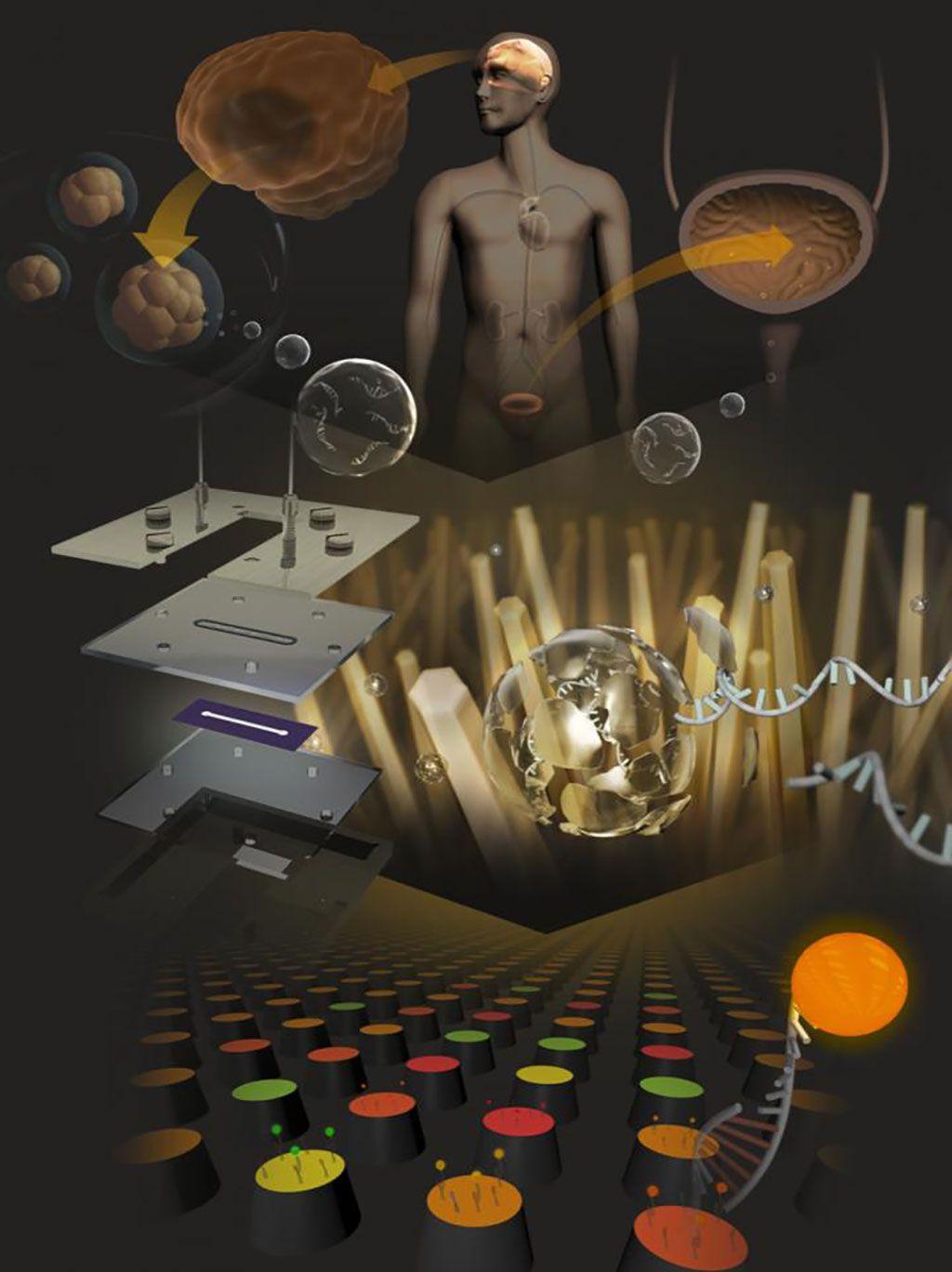 Imagen: Representación artística de andamios de nanocables para la detección de microARN urinarios de pacientes con tumores del sistema nervioso central (Fotografía cortesía de Takao Yasui y Atsushi Natsume, Universidad de Nagoya)