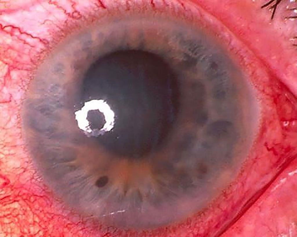 Imagen: El glaucoma primario de ángulo cerrado puede causar ceguera permanente si no se trata rápidamente. Se ha desarrollado una prueba genética de alta sensibilidad (Fotografía cortesía de la Universidad de Flinders)