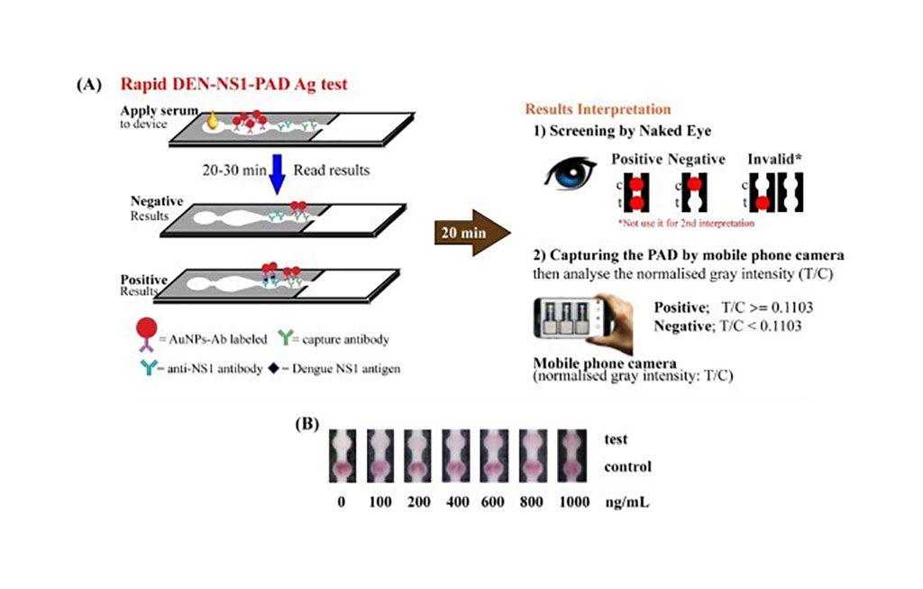 Imagen: Representación esquemática del procedimiento para la detección del dengue NS1 mediante el uso de DEN-NS1-PAD (Fotografía cortesía de la Universidad de Tecnología de Rey Mongkut en Thonburi)