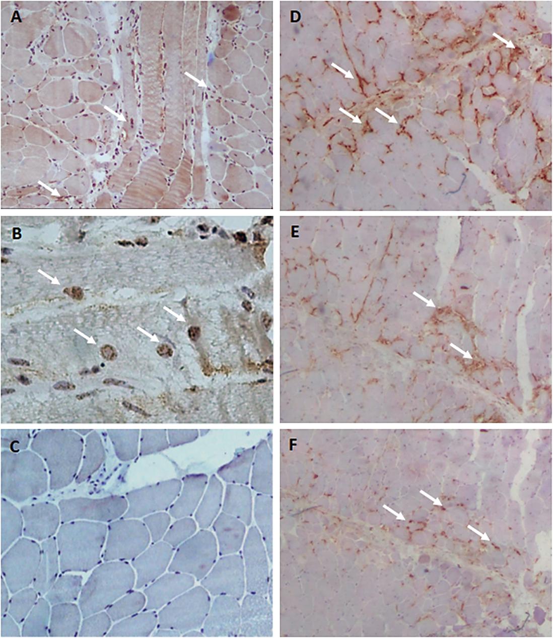 Imagen: Pacientes con síndrome antisintetasa con reacción inmunohistoquímica positiva de (A) YKL-40, (B) YKL-40 (mayor aumento); (C), muestra de un paciente con síndrome antisintetasa, pero sin infiltración inflamatoria; (D) CD68, (E) CD4 y (F) CD8 (Fotografía cortesía de la Universidade de Sao Paulo).